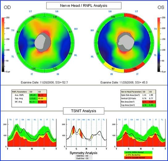 Analisi OCT delle fibre del nervo ottico in paziente sano
