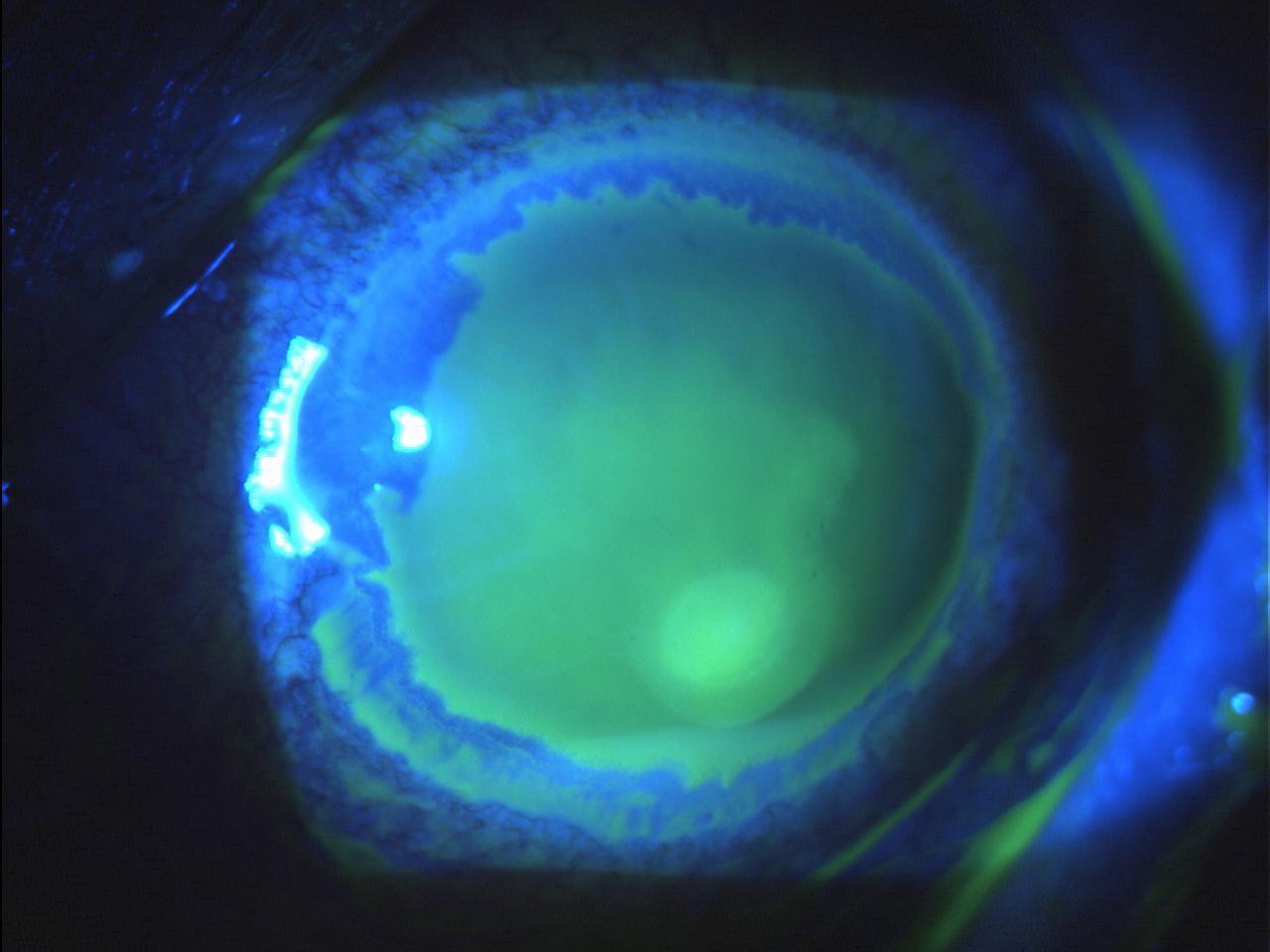 Difetto epiteliale cronico in cheratite neutrofica post-erpetica