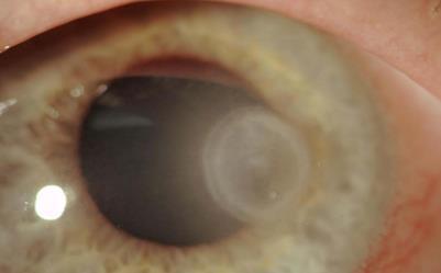 Cheratite infettiva batterica da Pseudomonas Aeruginosa.